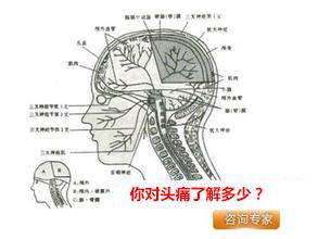 长期头痛的原因主要有哪些